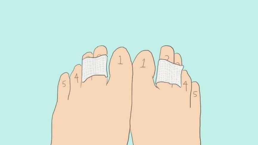 Ayak parmaklarınızın 2 ve 3. parmağını bantlayınca bakın neler oluyor?