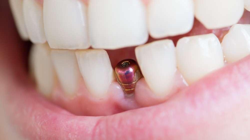 Sahte implantlar nasıl anlaşılır?