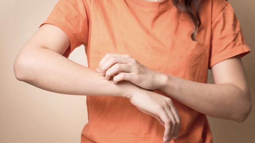 Deri hastalıkları otlarla tedavi edilir mi?