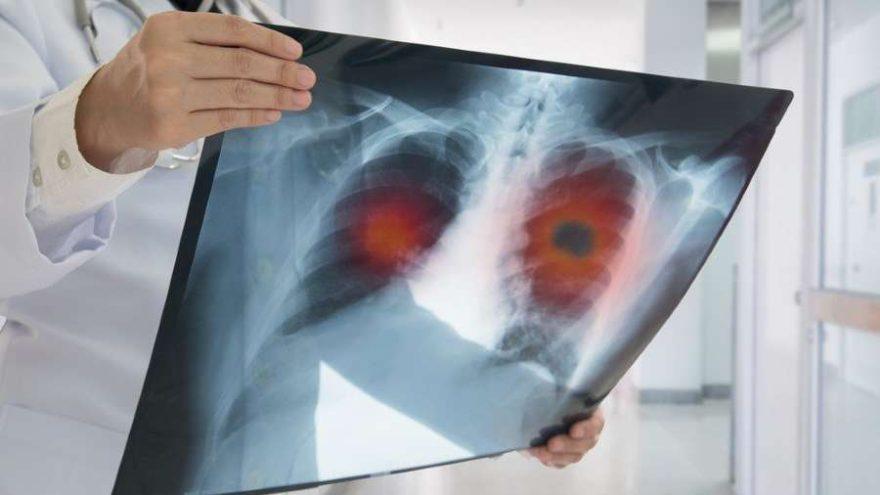 Akciğer kanserine karşı immünoterapi tedavisi