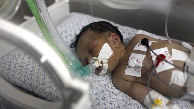 Mucize bebek hayata tutunmayı başardı
