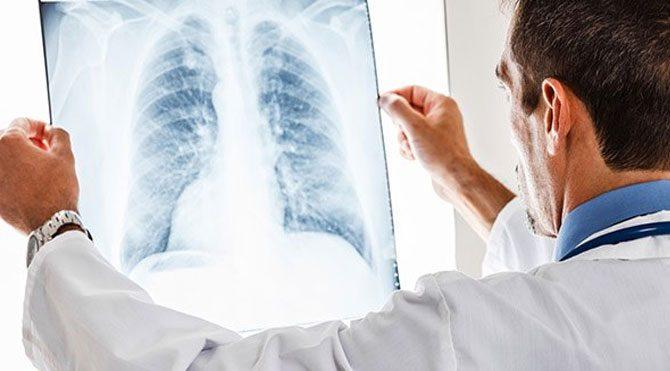 Akciğerinizin yaşını öğrenin