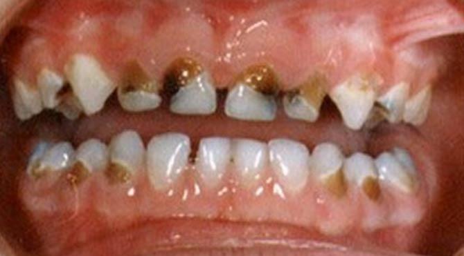 Çürük diş kalp enfeksiyonuna neden oluyor 87
