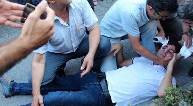 Protestocu gruba tüfekle ateş edildi!