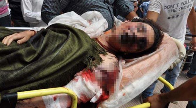 Patlamada yaralanan genç kızla ilgili bomba iddia!