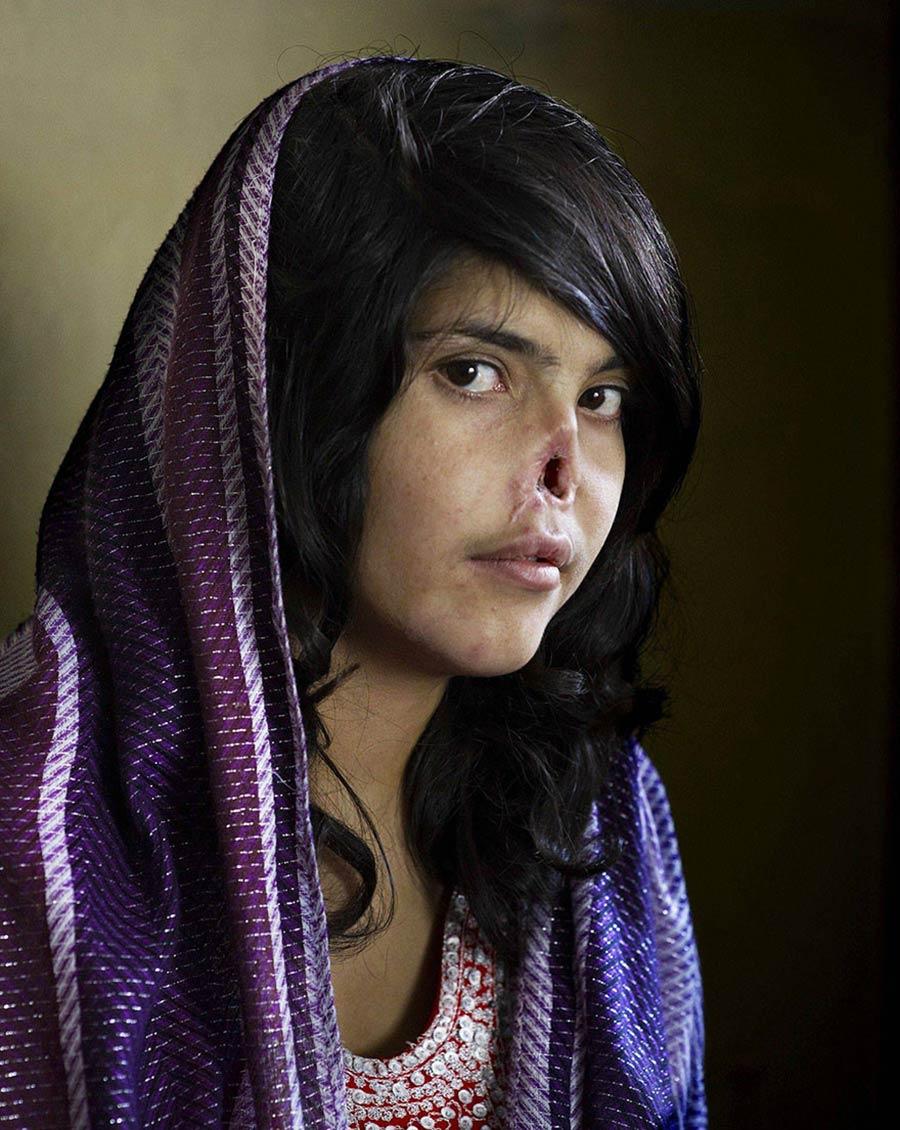 9 Ağustos 2010 Cesaret Bibi Ayşe, 18 yaşında. Babası 12…