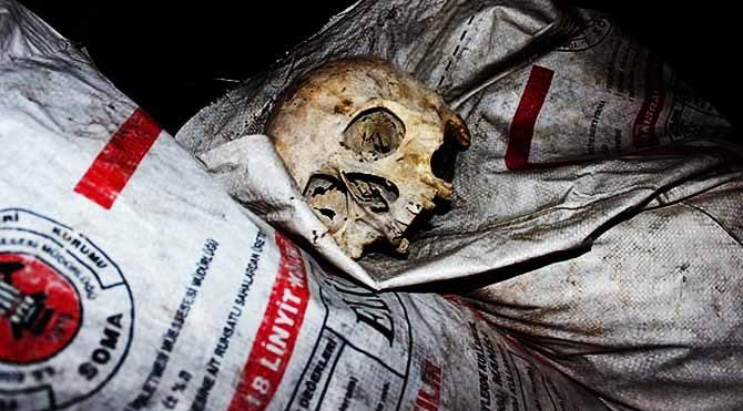 Çöpte bulunan kafatasının sırrı açıklandı