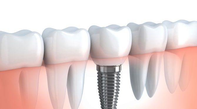 Hayatımızda artık 'Dental İmplant' var