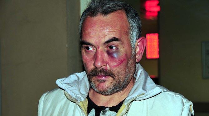 23 yıllık gazeteciyi işini yaptığı için dövdüler!