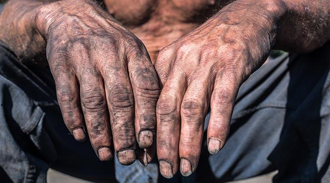 Toprak ağası işçisinin ellerini kesti