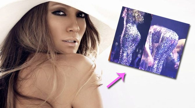 Jennifer Lopez'in konserde pantolonu yırtıldı