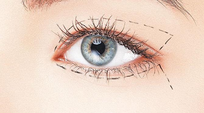 Göz estetiğiyle ışıldayan bakışlara sahip olun
