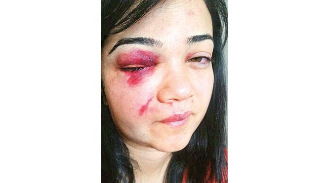 Kadına uygulanan şiddet, karşımıza 'eski eş dayağı' olarak çıkmıştı.
