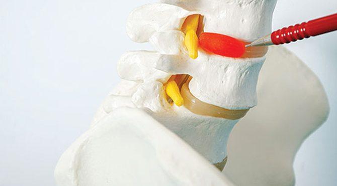 Kapalı bel fıtığı ameliyatı