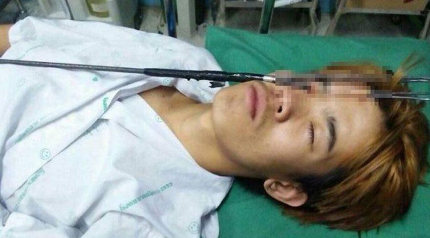 Tayland'da zıpkınla balık avlamaya giderken düşen bir genç, kazara tetiğe basarak kendini gözünden vurdu.