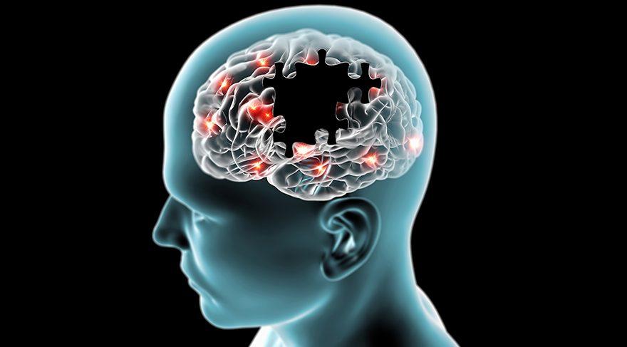 Alzheimer'ın belirtileri ve tedavisindeki son gelişmeler… O molekül mucize yaratacak mı?