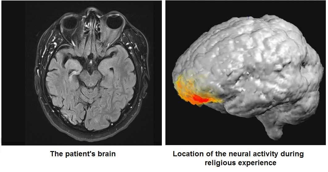 """""""Tanrı ile konuştuğunu"""" iddia eden epilepsi hastasının nöral aktiviteleri bilimsel araştırma olarak yayımlandı"""