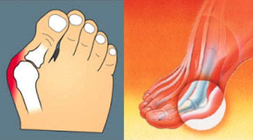 Ayak başparmağı çıkıklarının verdiği rahatsızlıkların büyük kısmı cerrahi operasyonlara gerek kalmadan doğru ayakkabı ve tabanlık kullanımı ile azaltılabilmektedir.