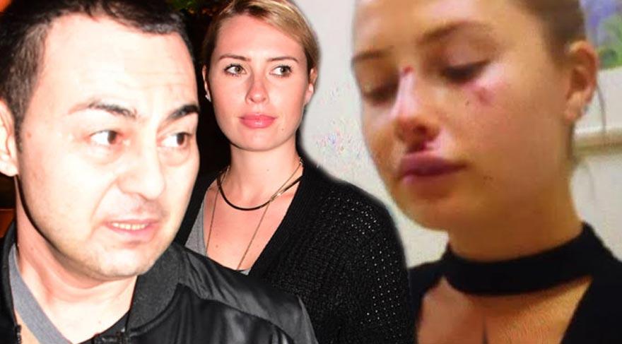 Serdar Ortaç'ın Eşi Chloe Loughnan'ın yüzüne ne oldu?