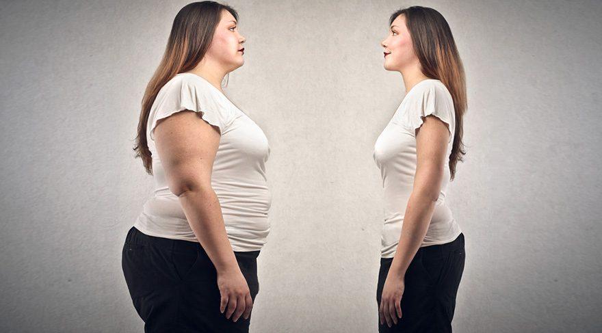 obezite-cerrahisi