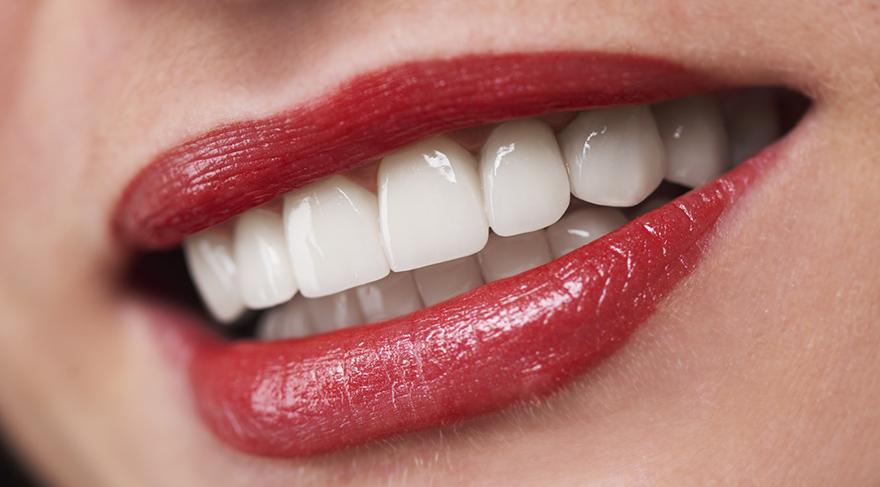 Fastbraces diş teli tedavisi, çapraşık dişleri düzeltmek için geliştirilen hızlı, güvenli ve uygun fiyatlı yeni bir diş tedavisi tekniğidir.