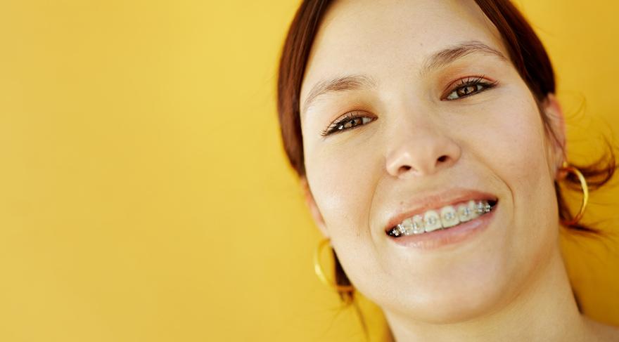 Diş teli tedavisinde hızlı yöntem