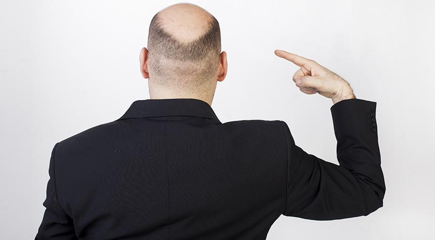 Kilo sorunu, erkeklerde kellik problemi riskini 3,5 kat artırıyor