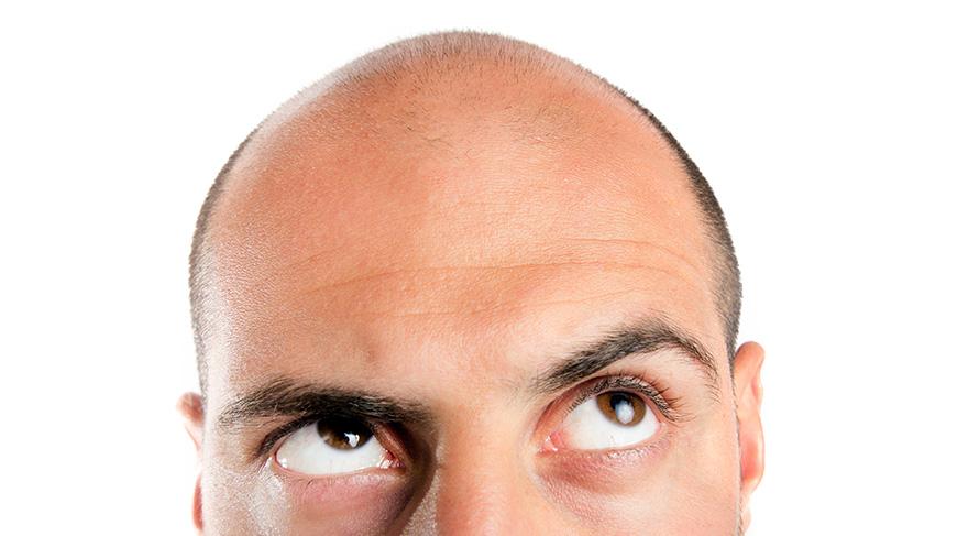 Erkeklerde saç dökülmesini 3,5 kat artırıyor