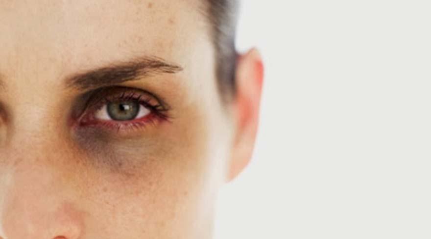 Göz altı morluklarını dert etmeyin
