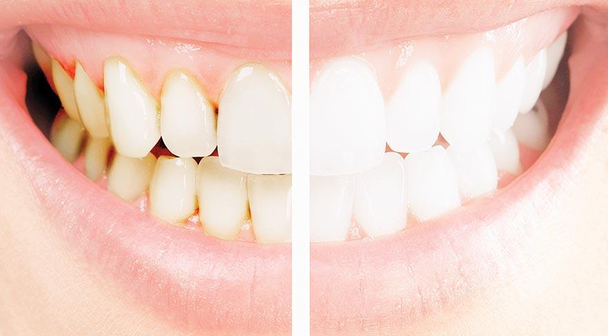 Diş beyazlatma özen ister