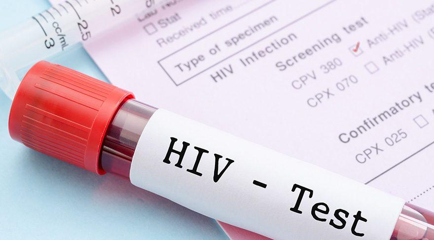 Avustralyalı bilim insanları duyurdu: AIDS alt edildi