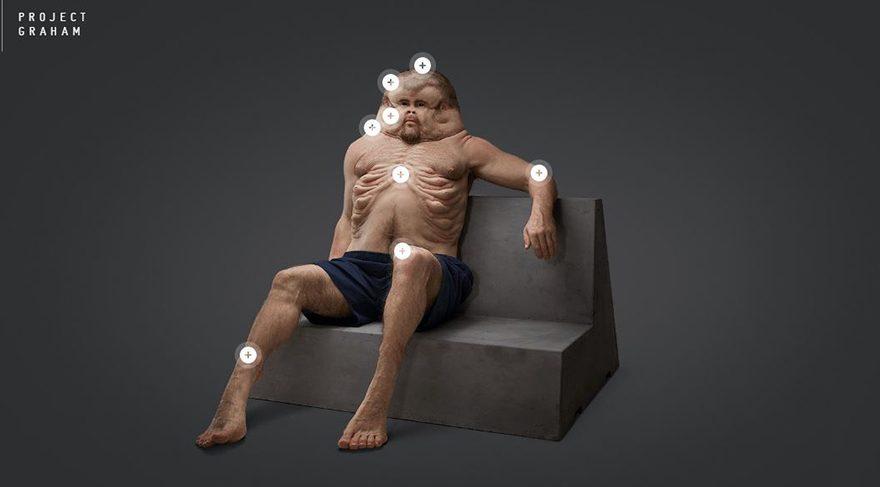 İnsan vücudu kazalara karşı dirençli olacak şekilde evrilseydi nasıl olurdu?