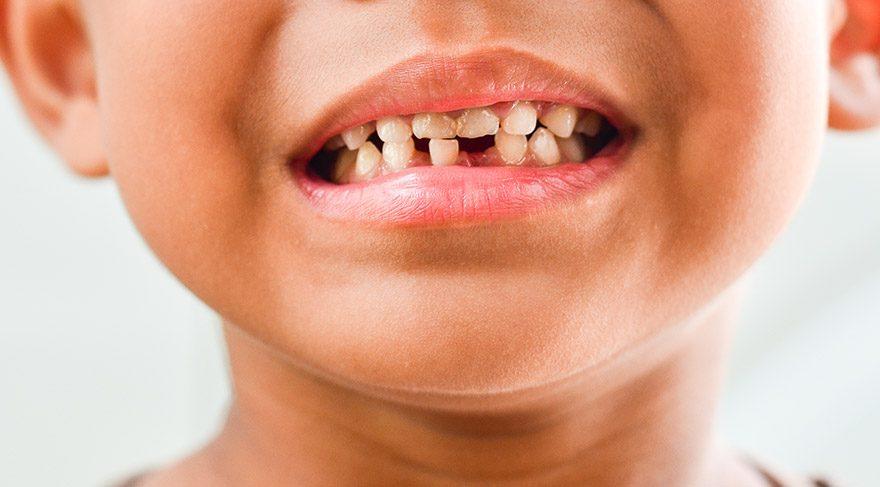 çürük diş sözcü ile ilgili görsel sonucu