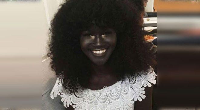 melanin2