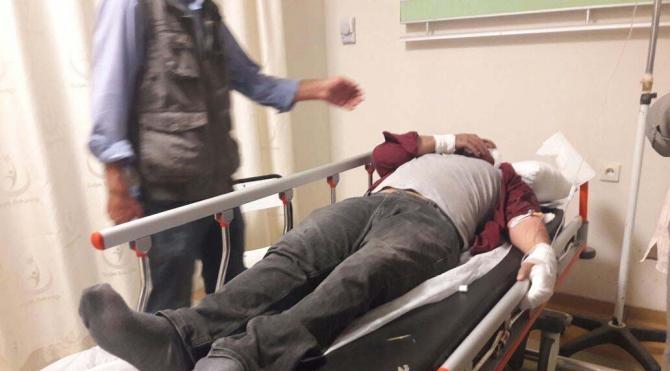 Üzerine yüksek gerilim hattı teli düşen engelli yaralandı