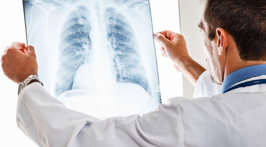 Akciğer kanserini tetikleyen faktörler neler?