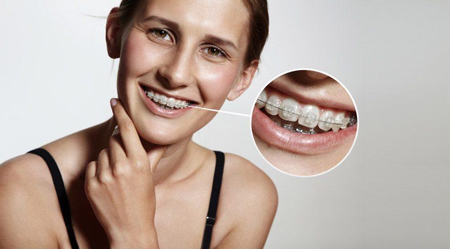 Gülüş estetiğinde ortodontik yöntemler