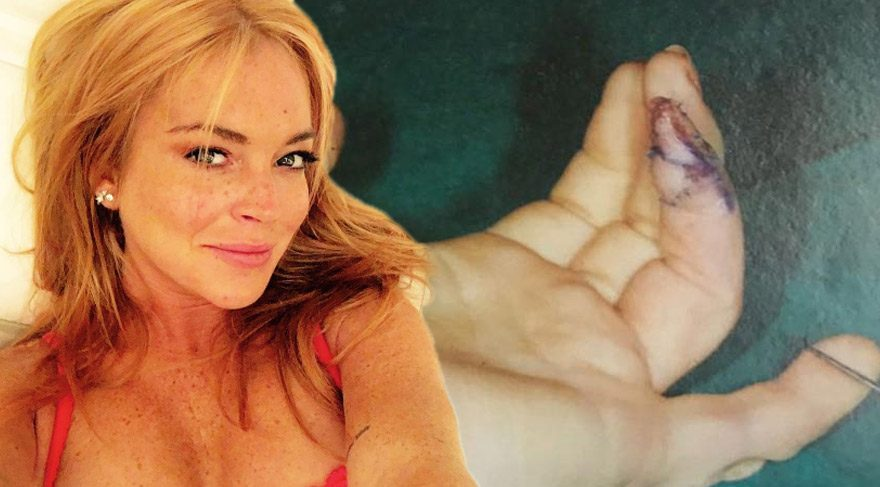 Lindsay Lohan'ın geçirdiği operasyondan görüntüler