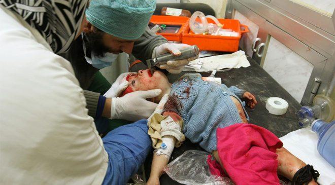 FOTO: REUTERS/ Doktorlar, Halep'te yaralanan bir çocuğu tedavi ediyor.