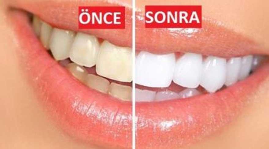 Doğal Diş Beyazlatma Yöntemleri- Evde Diş Nasıl Beyazlatılır? ile ilgili görsel sonucu