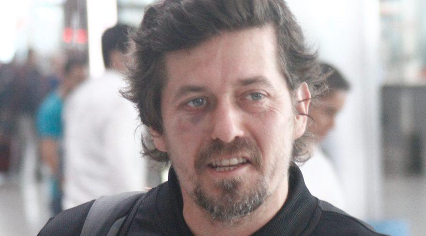 Mete Horozoğlu morarmış gözüyle ilgili açıklamada bulundu