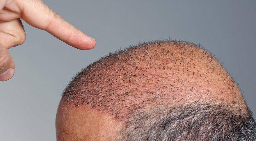 Tıraşsız saç ekimi mümkün mü?