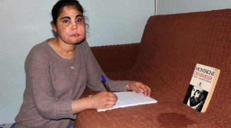 Türkiye'de yüz nakli olan ilk kadın öldü