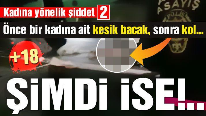 Adana'daki çöpten bu kez kadın kolu çıktı!