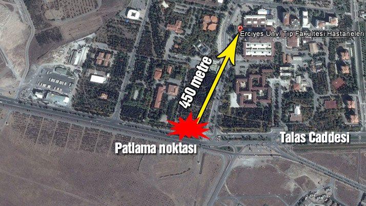 Son dakika: Kayseri'de hain saldırı