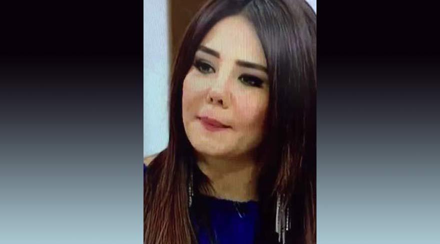 Esra Balamir geçirdiği estetik operasyonlardan sonra bambaşka biri oldu