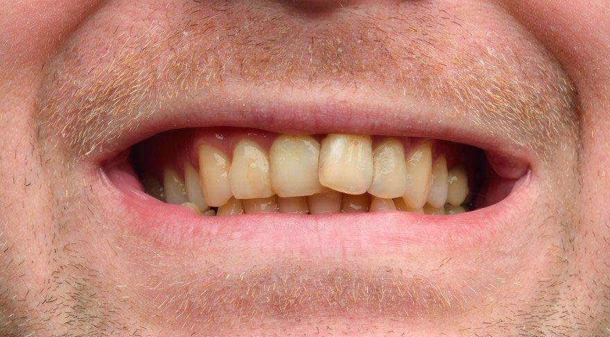 Sararmış dişlere 3 malzemeyle elveda!