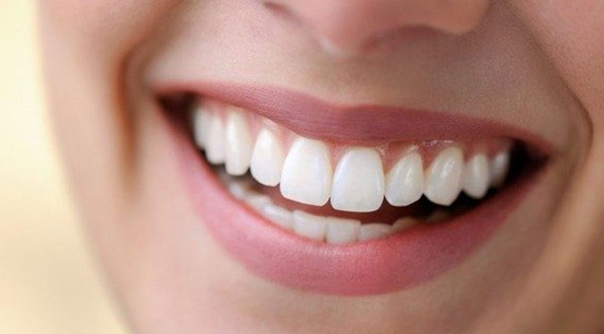 Diş Doktoruna Gitmeden Evde Diş Beyazlatma Nasıl Yapılır Sağlık