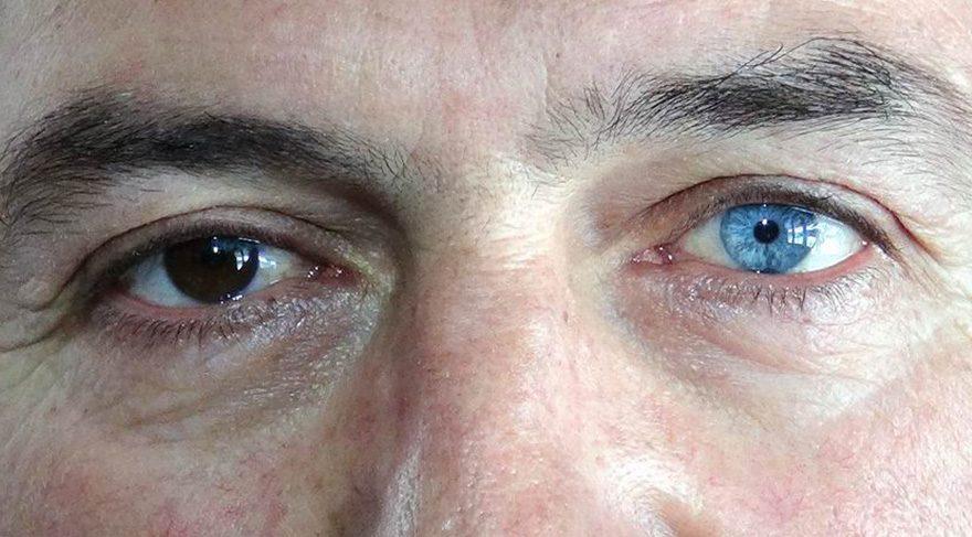 İki ayrı göz rengi başına dert oldu