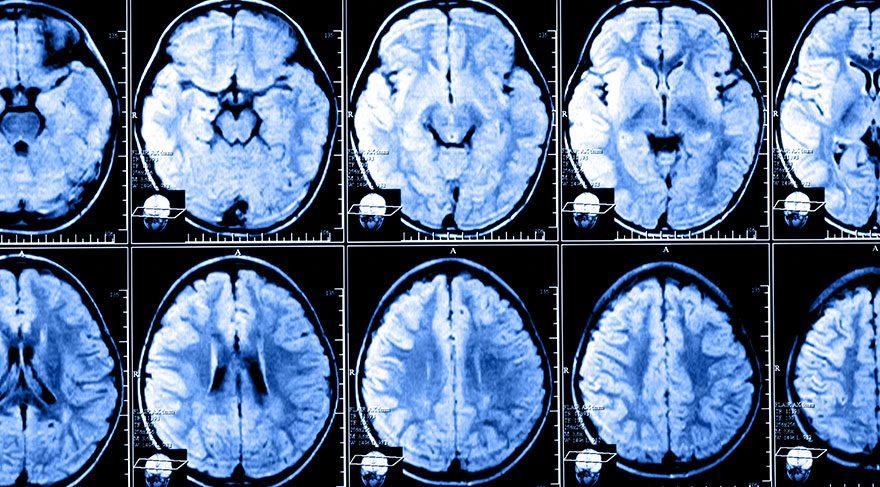 Prof. Dr. Rana Karabudak: MS, akıl ya da ruh hastalığı değildir